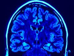 「脳に効くDHAやEPAをもってしても認知症は予防できないとの調査結果が・・・」の続きを読む